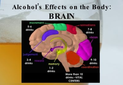 Effects of alcohol on the human brain