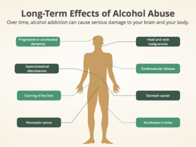 Treatment of Alcohol addiction