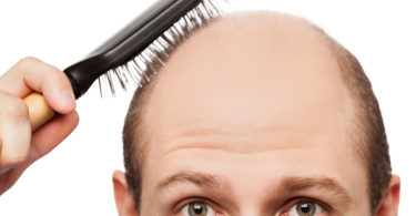 Alopecia - causes and treatment