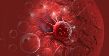 Cancer - causes and treatment