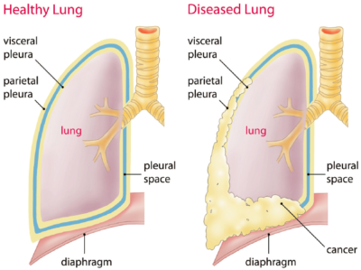Diagnosis of Mesothelioma
