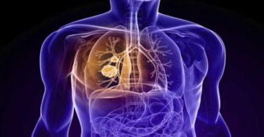 Mesothelioma - Symptoms and Causes