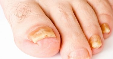 Nail Fungus - Types and Treatment