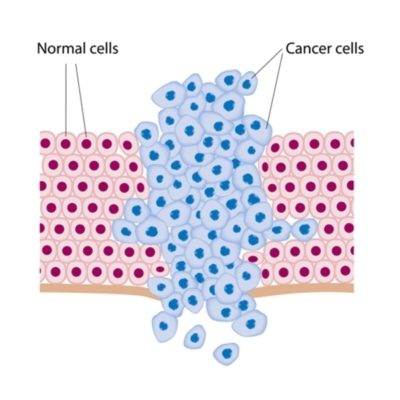 Oncology and cancer treatment