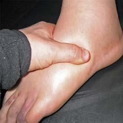 Edema during pregnancy – When to Worry?