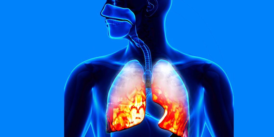 Pneumonia - Causes, Symptoms and Treatment