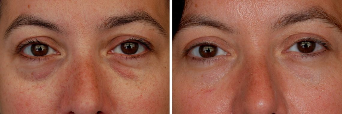 Dark Circles Under Eyes - Causes & How To Get Rid Fast ...