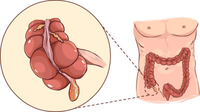 Appendicitis: Causes and Symptoms