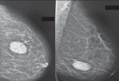 Diabetic mastopathy - Diabetic fibrous breast disease